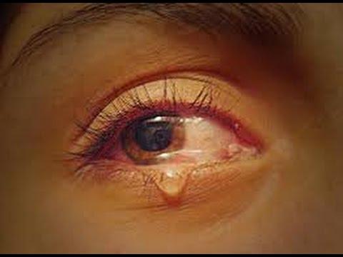 cara menghilangkan mata merah dan berair